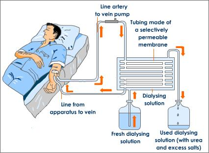 use of an artificial kidney machine quizlet