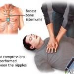 Source: ADAM Interactive Anatomy