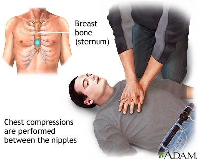 First Aid Basic Life Support Dr Khoo Yoong Khean The Malaysian