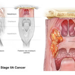 Source: http://www.asiancancer.com/cancer-diagnosis/nasopharyngeal-cancer-diagnosis/