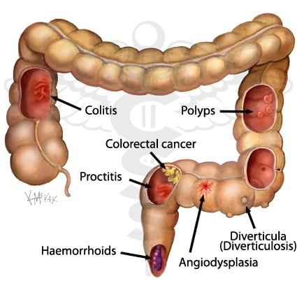 Source: http://colorectalsurgeonssydney.com.au