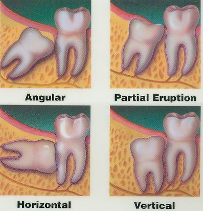 Sumber: www.hanoverdentalclinic.ca