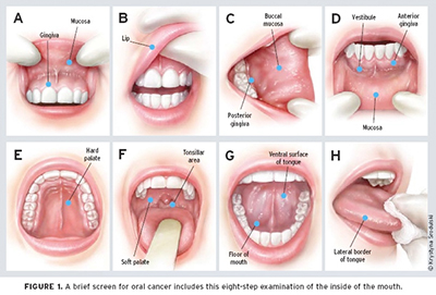 Pemeriksaan sendiri kanser mulut