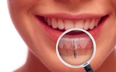 Source  www.dentalimplantcostarica.com eea4640b45
