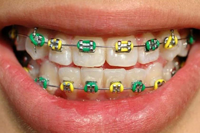 Source: www.dentistrytoday.info