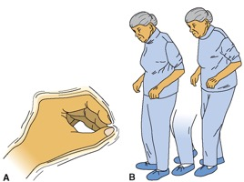 Figure 1: A) Pill rolling tremor B) Stooped posture with shuffling, hesitant gait