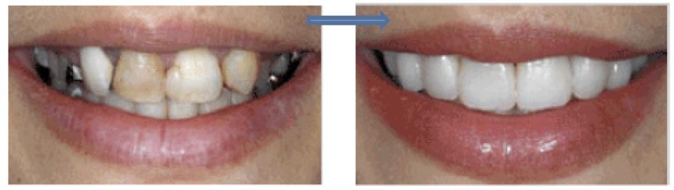 Perlu Bayar untuk Senyuman Menawan  – Dr Anis Ezrina  9a6853fea7