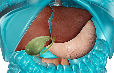 gallbladder-surgery-for-gall-stones-preview