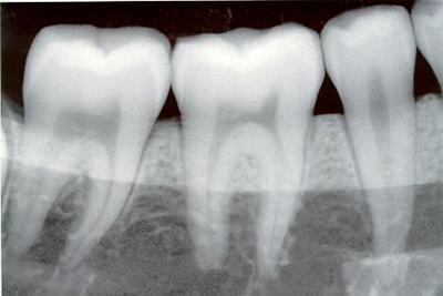 dental-x-ray