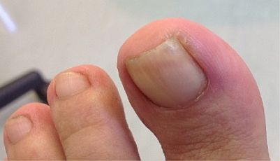 ingrown-toenail-surgery-stage1
