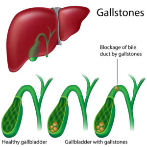 symptoms-gallstones